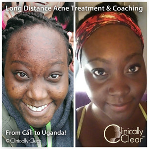 Long distance acne treatment from Clinically Clear