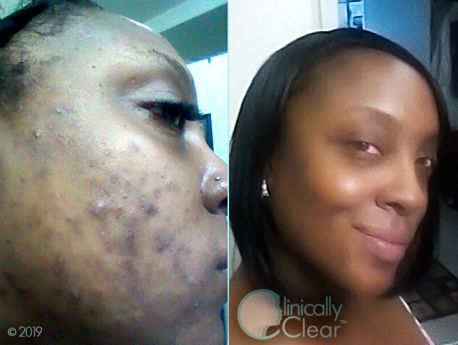 Before After Clinically Clear